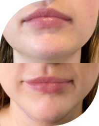 Lip Services | The Arch Edit Brow Bar | Cosmetic Tattooing | Brow & Skin Specialist